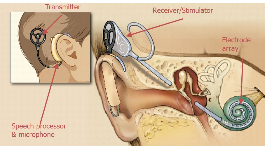 1 Hearing Aids Reviews  Get The Facts Before You Buy!
