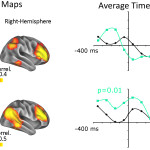 Brain networks in childhood – they're dynamic!