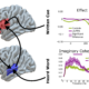 Frontal brain regions are necessary for flexible predictions during speech perception