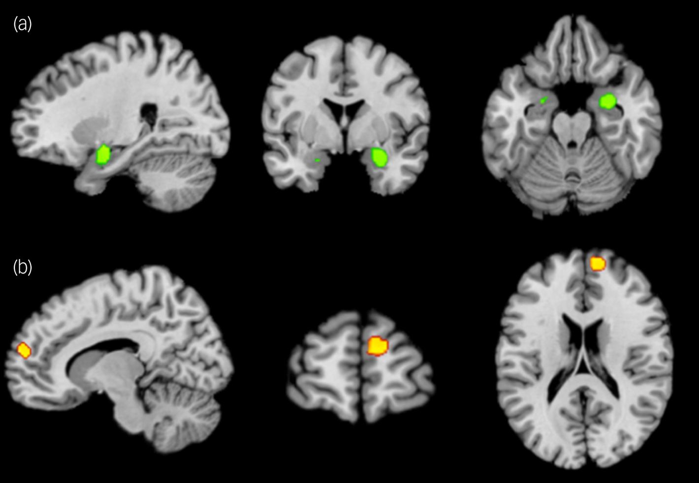 Do psychological therapy and antidepressants help by changing the same brain regions?